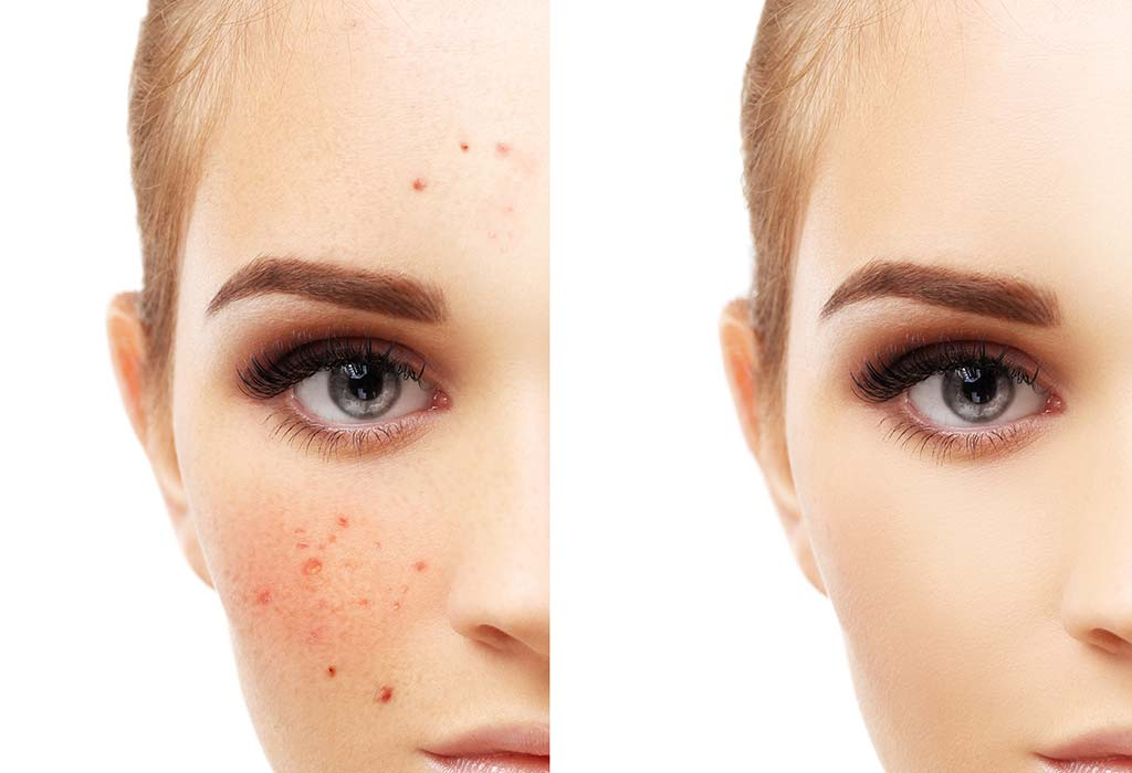 Peeling treatment for acne & pigmentation
